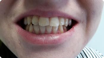 Bielenie zubov s bieliacim gélom Opalescence PF 16%, počiatočný stav