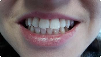 Bielenie zubov s bieliacim gélom Opalescence PF 16%, stav po dvoch týždňoch aplikácie