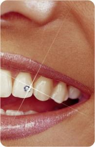 Skyce - dentálna bižutéria